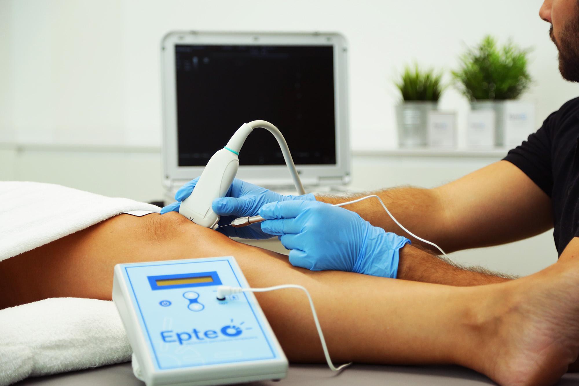 Servicio electrolisis percutanea terapeutica en clinica ionclinics
